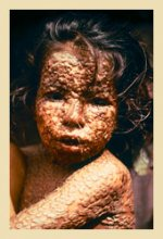 Photo of a child infected with smallpox